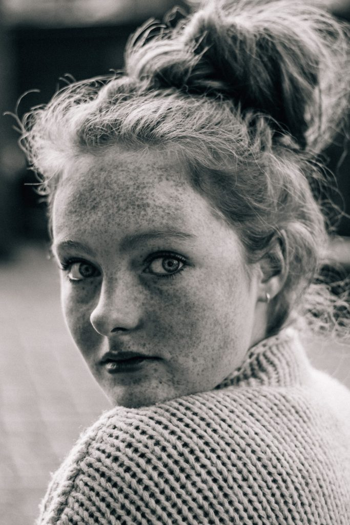 girl with freckles black white